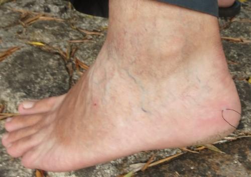 Nachlässige Fußpflege am letzten Pilgertag: Auch der Pilgerkönig bekommt mal eine Blase am Fuß.